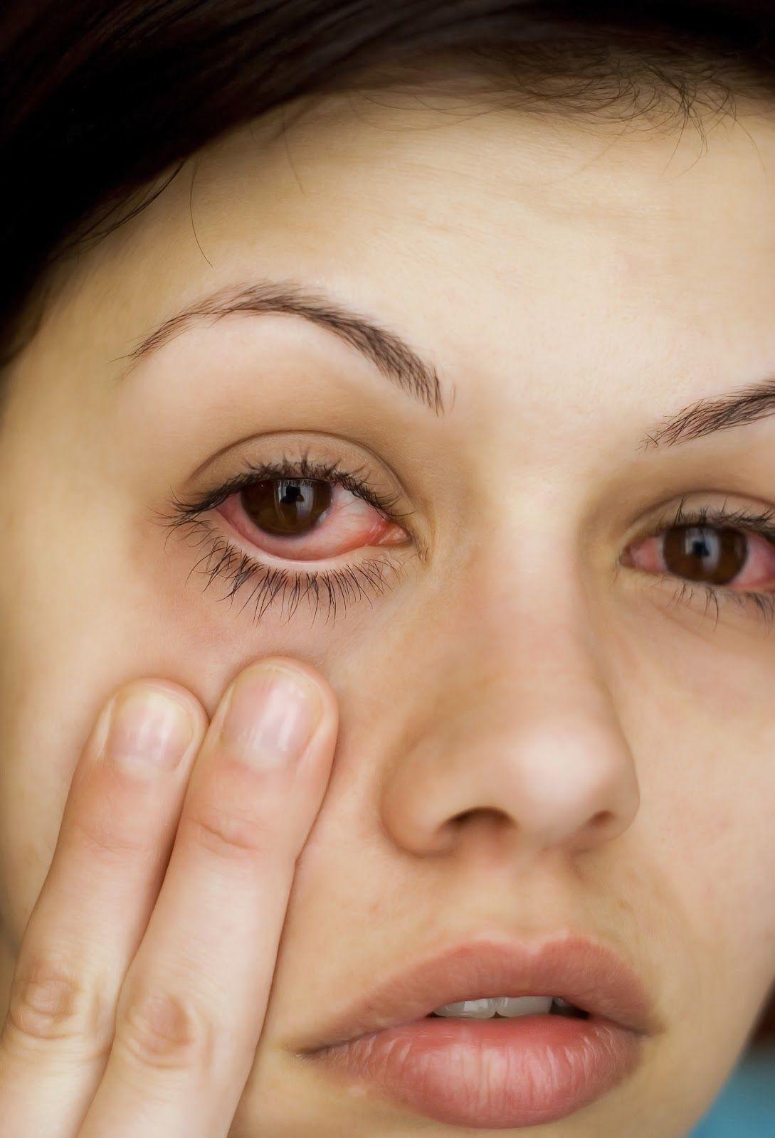 foto Allergy Relief: Soothing Swollen Eyes