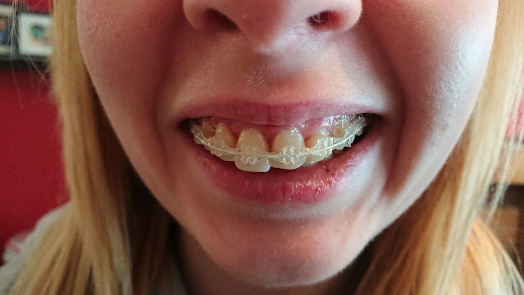 5/6 Month update on journey with braces as an adult