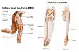 Risultati immagini per stretching fascia lata esercizi