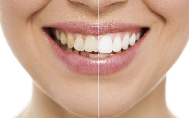 Impressionante Aprenda Um Truque Facil Para Clarear Os Dentes Em