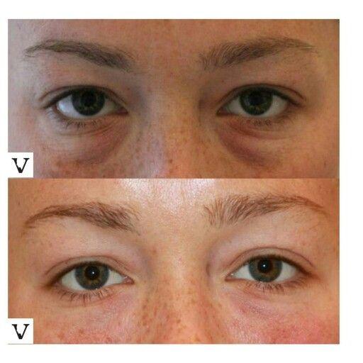 Botox in a bottle for eyes-8843