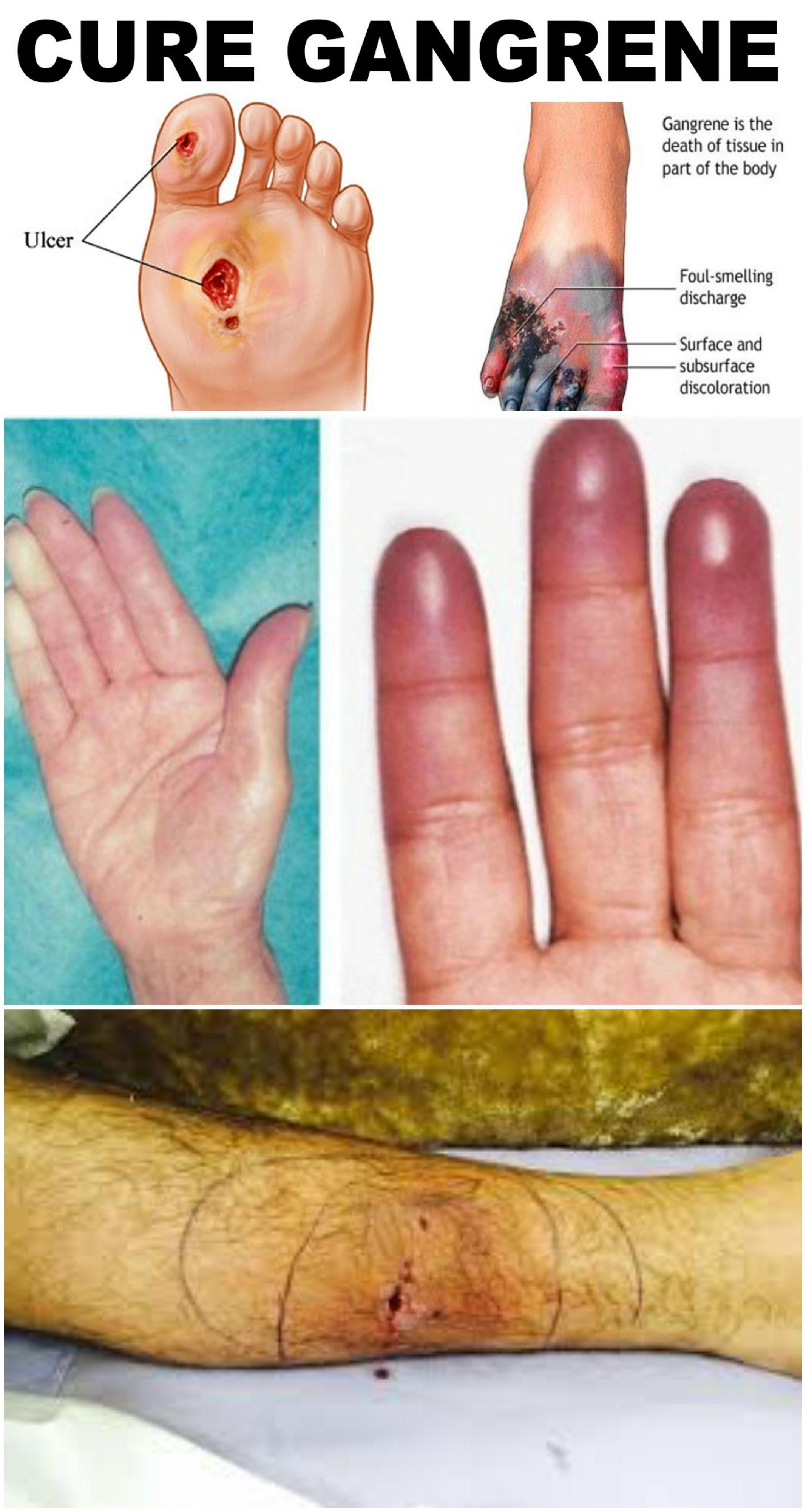 Gangrene anxiety. How to heal her