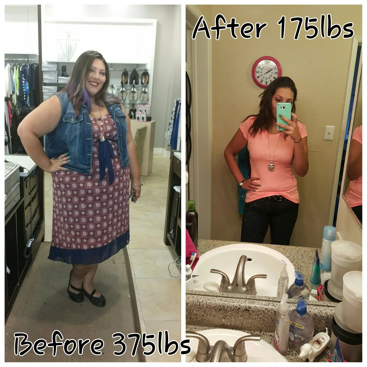 Before And After Gastric Sleeve 200 Lb Weight Loss Healthy