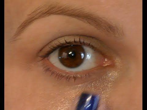 como eliminar los moretones del ojo