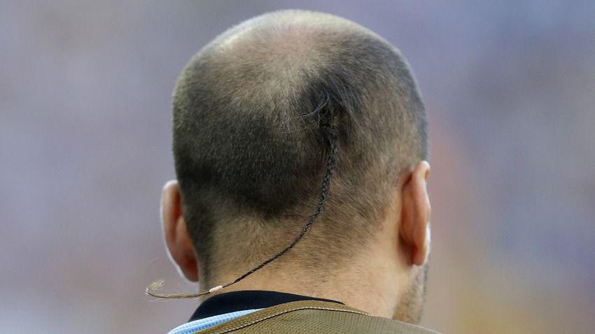 Worst/Best hairdo: Rodrigo Palacio