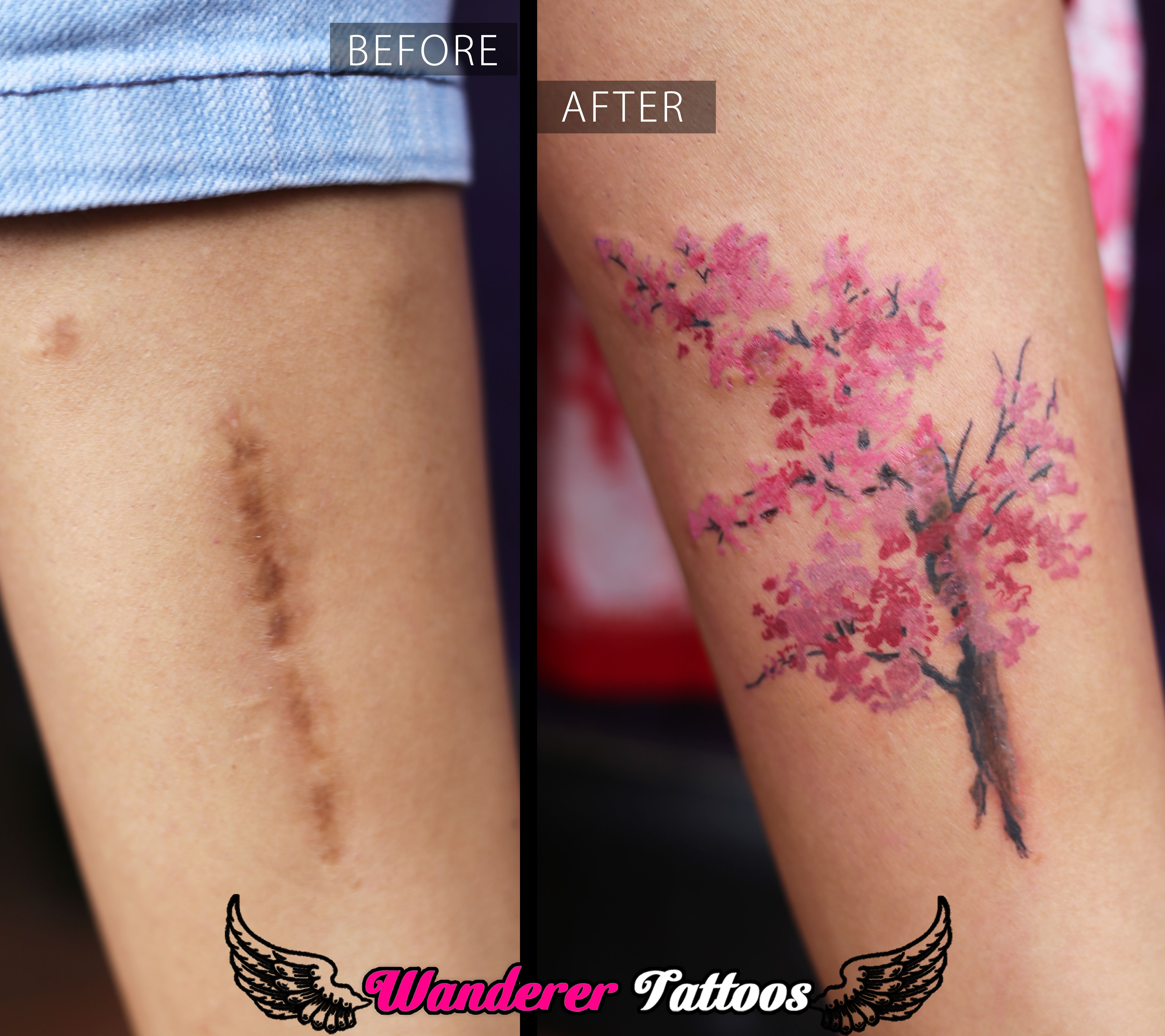 Scar Cover Up With Exquisite Cherry Blossom Tree Tattoo By Anmol