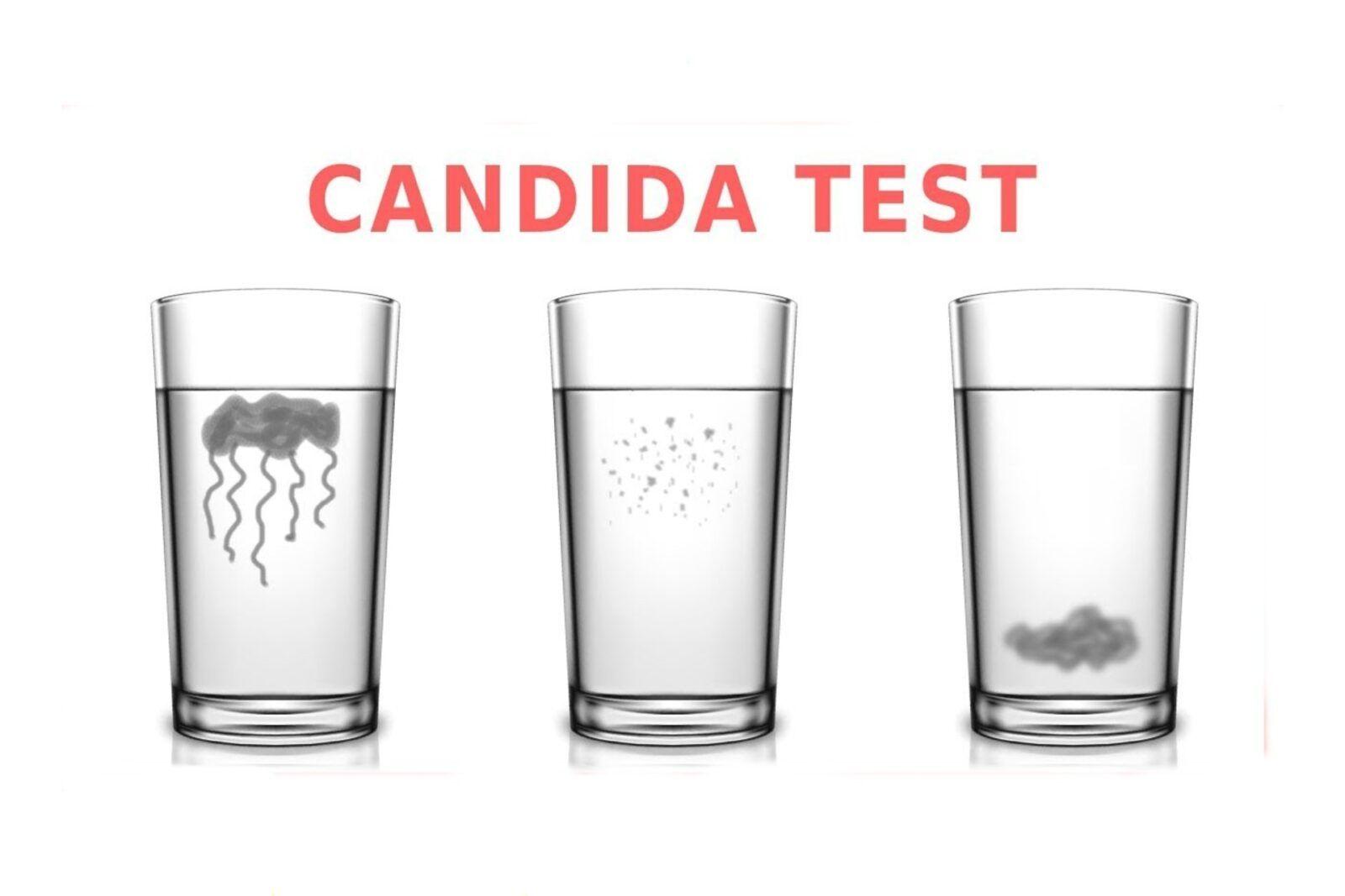 Ecco come individuare la candida con un test semplice e veloce da fare a casa
