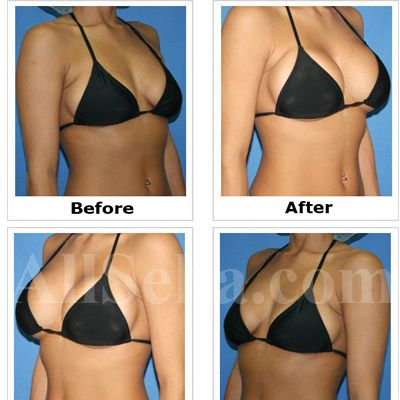 Breast augmentation before and after pregnancy
