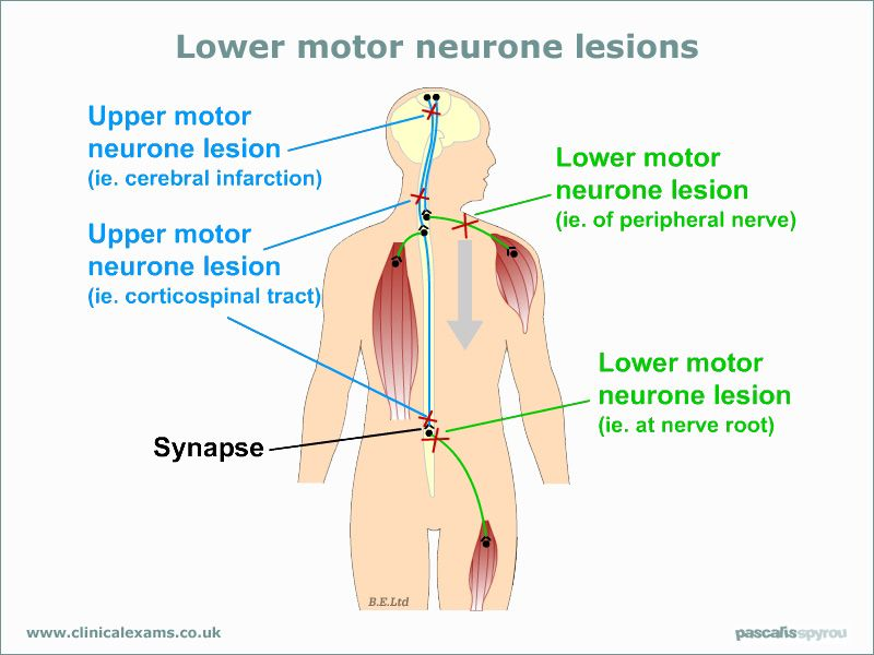 Lower Motor Neuron Vs Upper Motor Neuronnfusing To Me Since