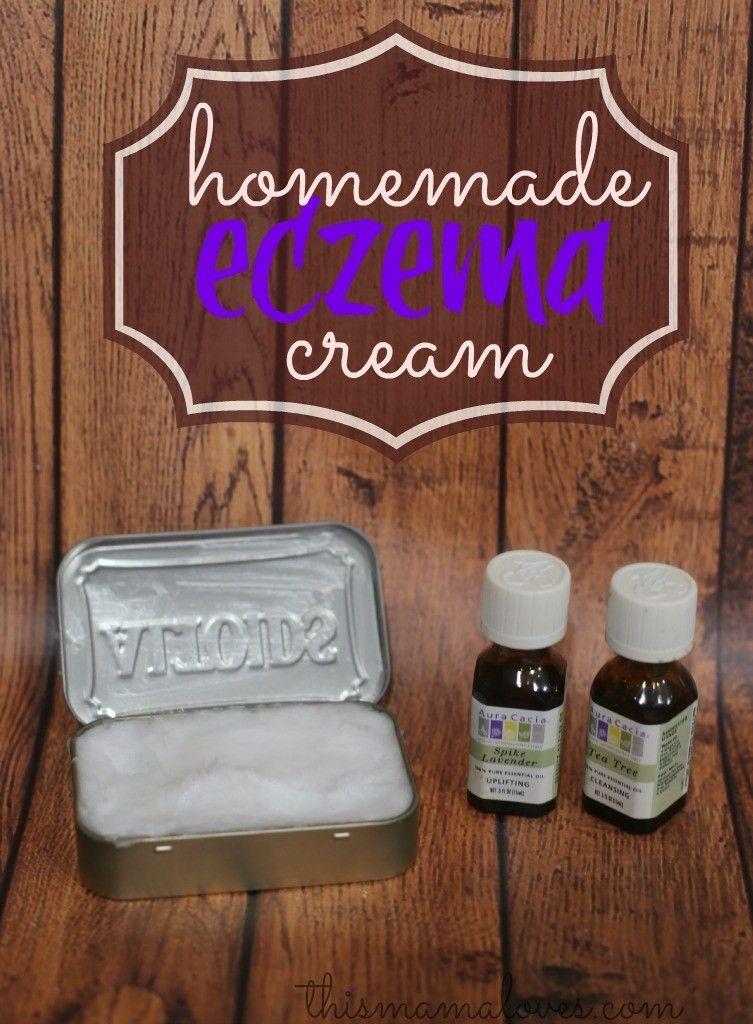Homemade eczema cream recipe eczema cream homemade