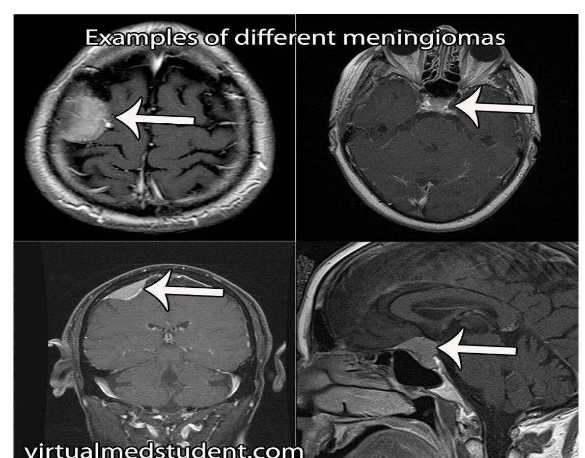 Imagen de Liznel Feliberty en Imagenes de CT SCAN y MRI