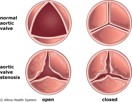 Diagram Compares A Normal Aortic Valve To A Heart Valve With Aortic