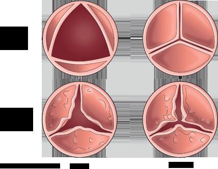 Diagram compares a normal aortic valve to a heart valve ...