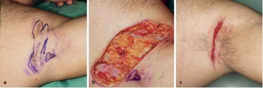 hidradenitis suppurativa | Hidradenitis Suppurativa Pictures