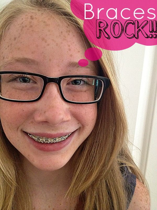 10 Tips to healthier teeth with braces filing this one