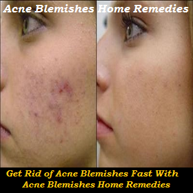 What Gets Rid Of Blemishes Fast