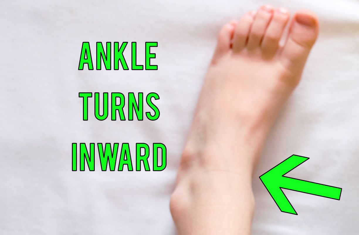 If your child has flat feet, then there main be chances of #foot pronation