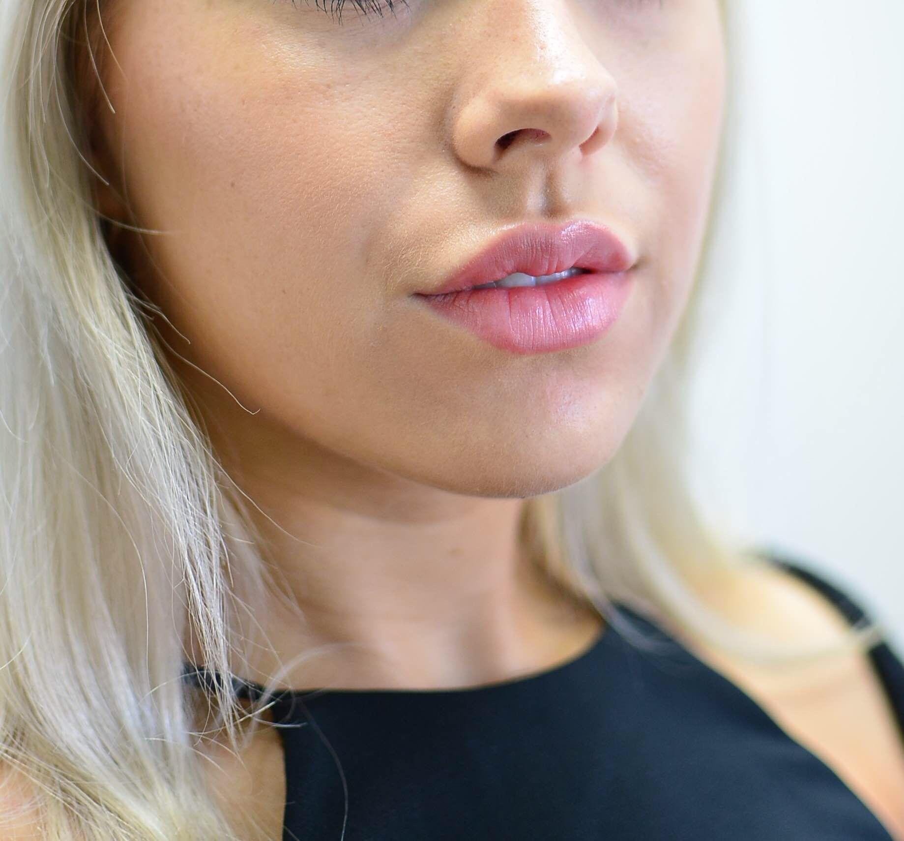 Dermal lip filler by Dr. Le