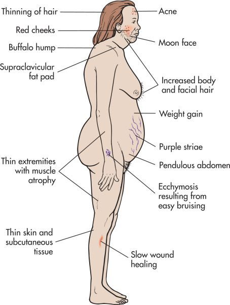 Is it harder to lose fat or gain muscle picture 1