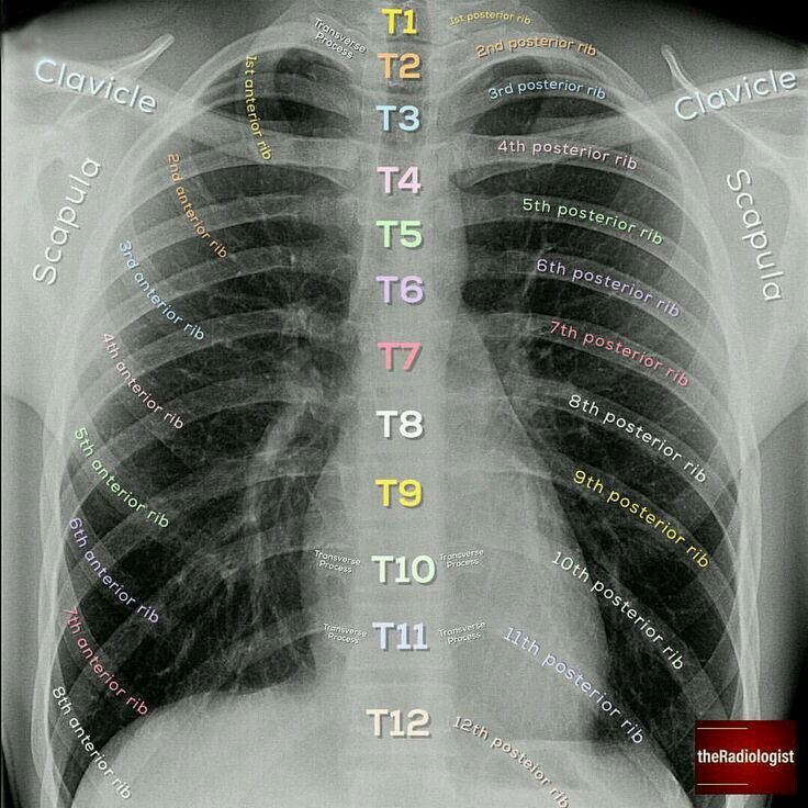Pin By Esa On X Ray Medical School Studying Medical Knowledge Medical Anatomy
