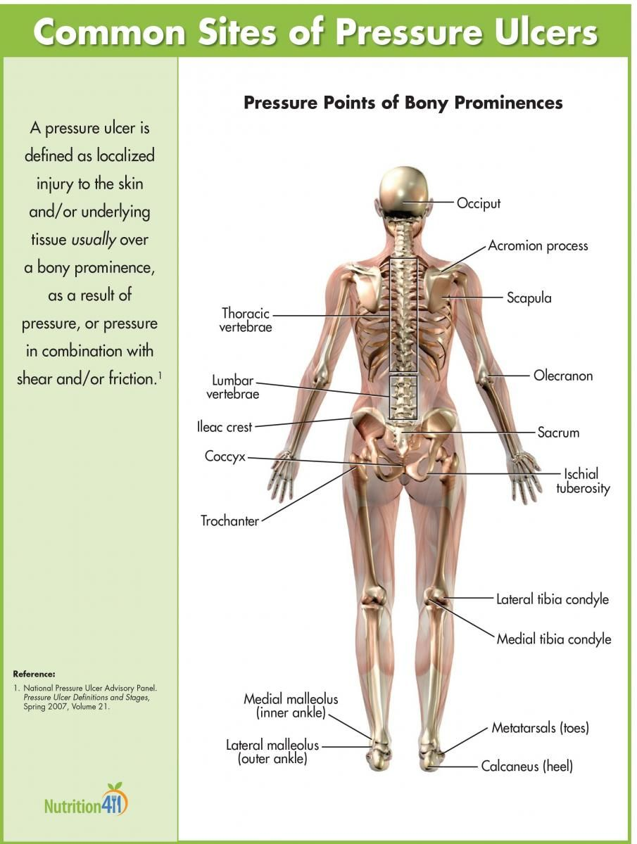 hight resolution of common sites of pressure ulcers nutrition411 nurse pinterest stage 3 pressure ulcer human body diagram pressure ulcer