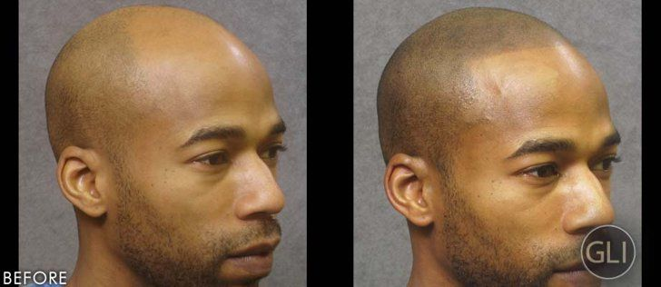 How Scalp Tattoos Are Empowering Men With Hair Loss Beauty Secrets