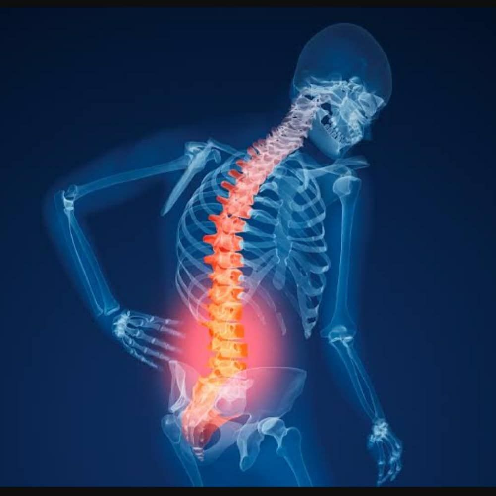 Bugun Internette Surf Yaparken Dunya Osteoporoz Gunu Oldugunu Ogrendim Birseyler Yazayim Dedim E Spinal Stenosis Surgery Spinal Stenosis Treatment Hip Flexor