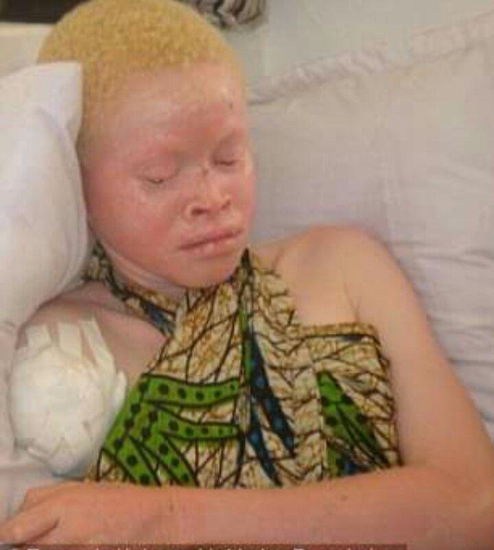 Tanzanias Albinos Hunted Down like Animals, Hacked Apart