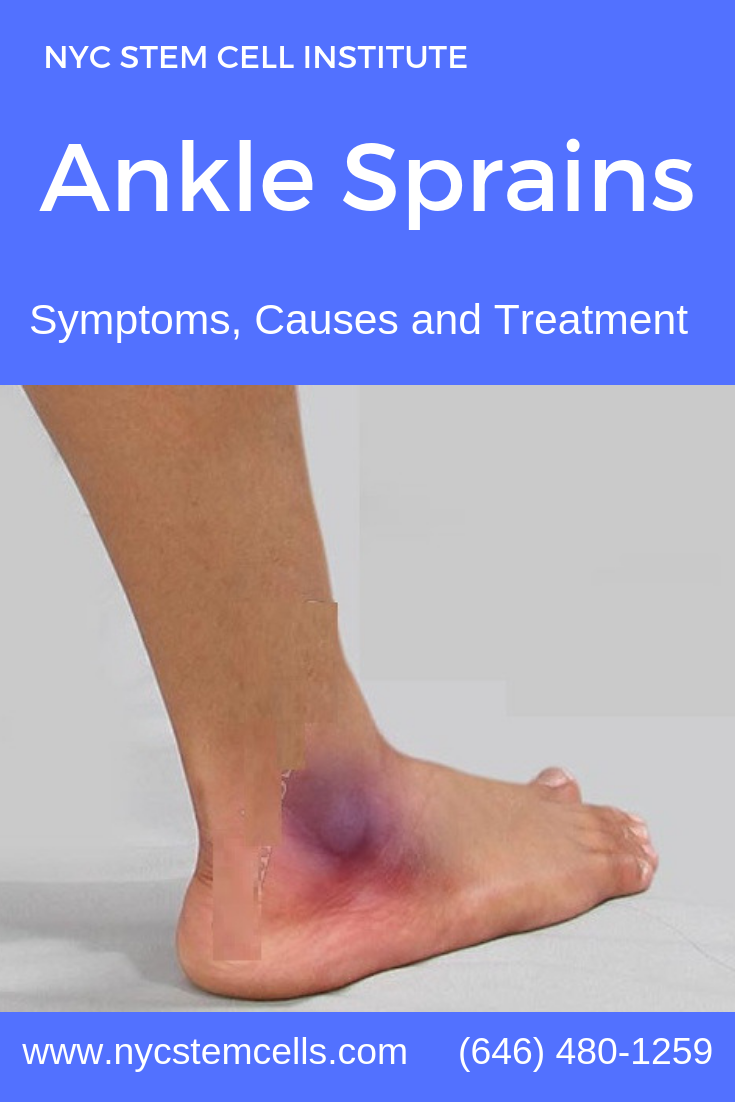 Ankle Sprains are one of the most common types of sports