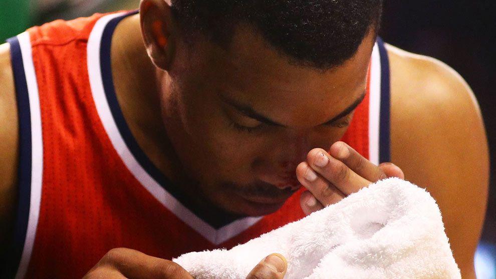 Playoffs NBA: Imágenes de impacto: la serie más sangrienta y gore de los 'playoffs'   Marca.com http://www.marca.com/baloncesto/nba/playoffs/2017/05/03/59099c30e2704ea43e8b45ff.html