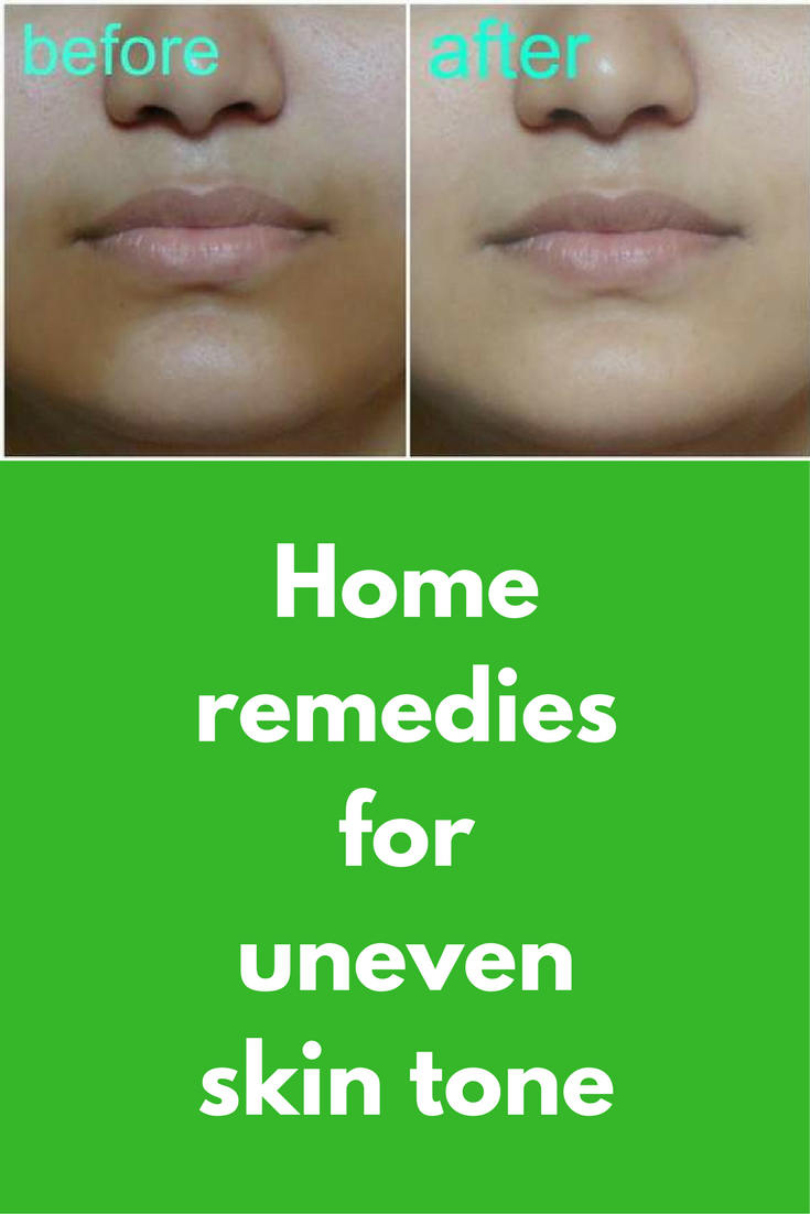 Skin uneven on for remedies face tone How To