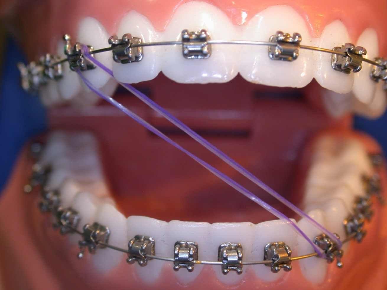 Cosas Que Le Pasan A Todas Las Personas Que Usan Brackets Brackets Dentales Ligas Para Brackets Brackets