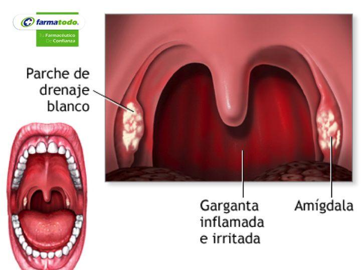 FARMACIA ¿Qué es a faringitis? Es n padecimiento que se presenta con la a inflamación de la pared de la faringe o del tejido linfático del que está formado. Por esta razón, generalmente se habla de una faringo-amigdalitis, porque tanto la faringe como las amígdalas o anginas, suelen infectarse de manera simultánea. Normalmente está provocada por una infección que puede ser de tipo viral o bacteriana viral o bacteriana. www.farmatodo.com.mx