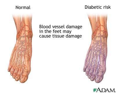 Diabetica los neuropatia pies de