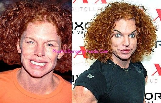 Carrot Top Before After Plastic Surgery Gone Wrong Photo
