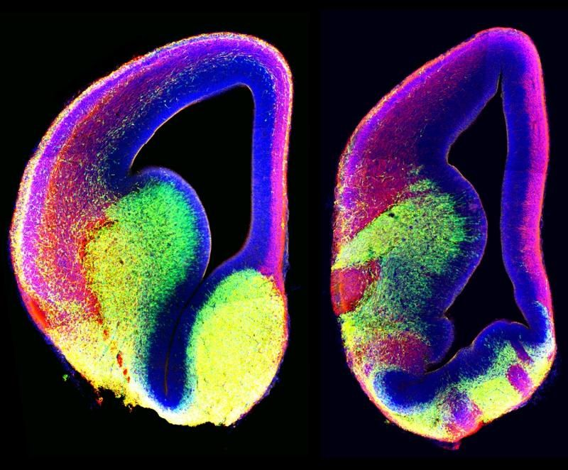 Watching the developing brain, scientists glean clues on neurological disorder