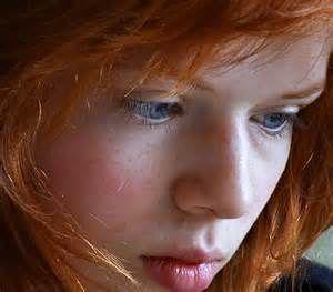 Scottish Features Fair Skin Red Hair Blue Eyes