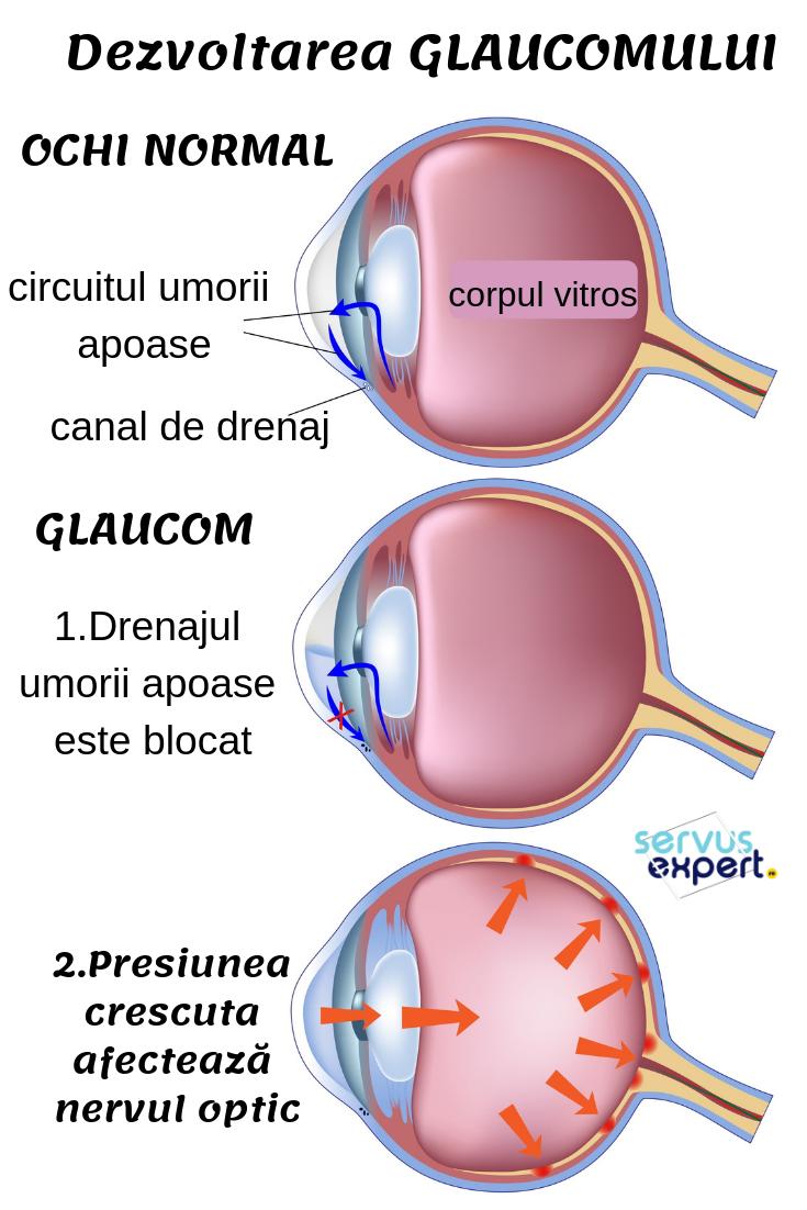 varicoză în interiorul ochiului