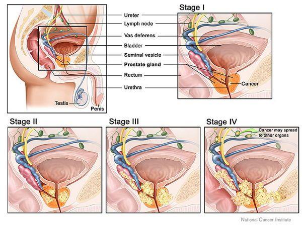 behandlung von prostatitis 2 abakterielle.jpg