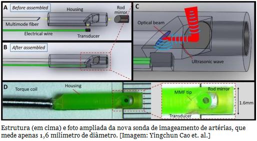 Nova técnica de imageamento permite ver dentro das artérias  Um novo sistema para fazer imagens médicas, chamado imageamento fotoacústico intravascular, consegue produzir imagens tridimensionais do interior das artérias