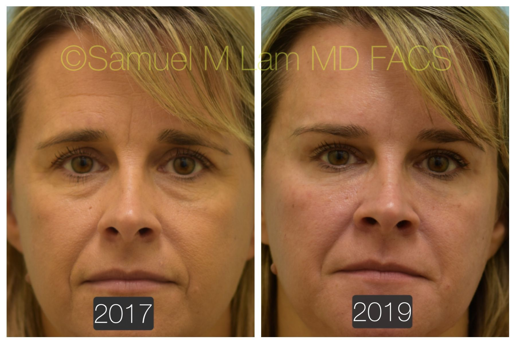 This 46 Year Old Woman Is Shown Two Years Before And After Botox And Fillers To Improve Her Youthfuln Nose Job Skin Bleaching Cream Effective Skin Care Routine