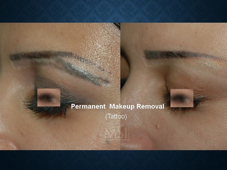 Pin by moawad skin institute on tattoo laser removal