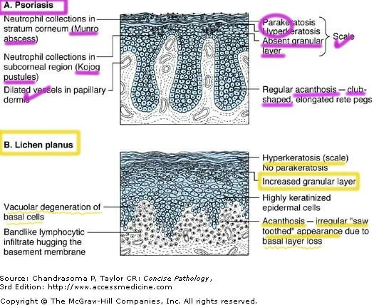 proteus vulgaris behandling