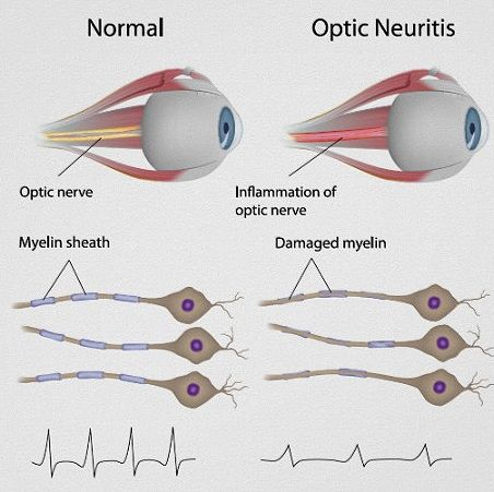 Cures for optic neuropathy