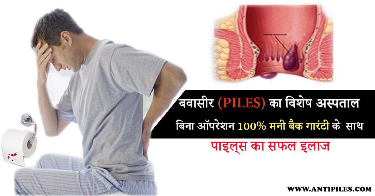 The Other Name Of Piles Is Hemorrhoids Which Is Generally Occurred In Two Types Which External Hemorrhoi Hemorrhoids Treatment Hemorrhoids Bleeding Hemorrhoids