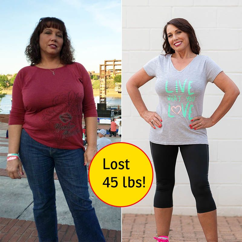 Pictures Of Sondra Before And After Weight Loss Weight Loss