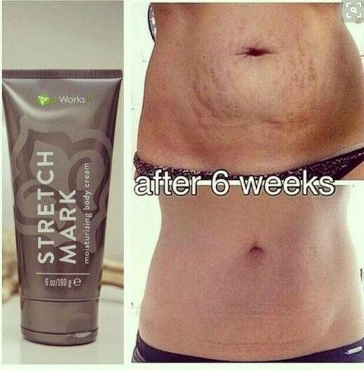 Have You Tried That Crazy Wrap Thing Itworks Stretch Mark Cream