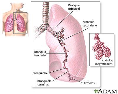 Neumonía por micoplasma | especialidad obstetricia | Pinterest | Salud