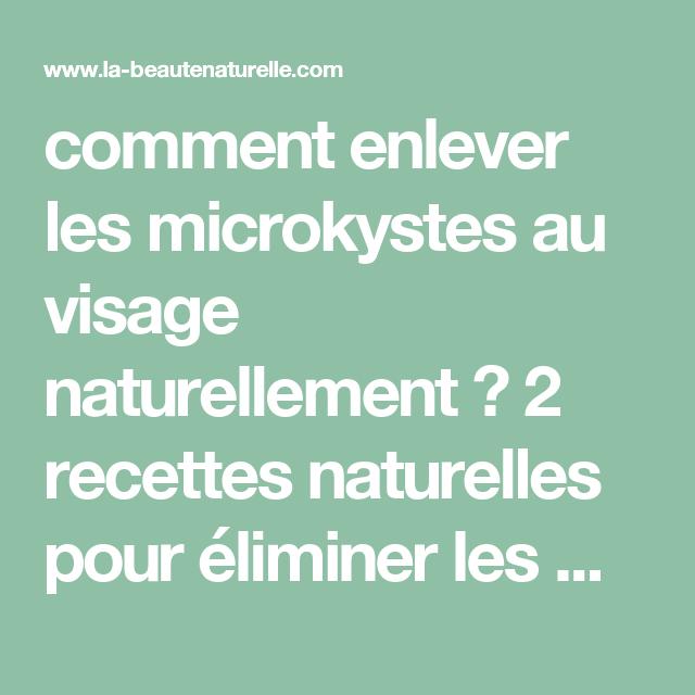 bcad8d592a5 comment enlever les microkystes au visage naturellement   2 recettes  naturelles pour éliminer les micro-kystes
