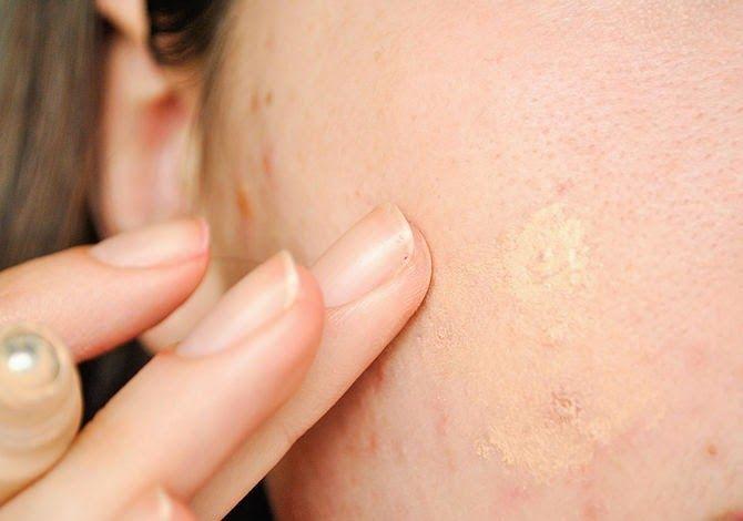خلطات لعلاج اثار حب الشباب Best Acne Treatment Acne Treatment Treatment